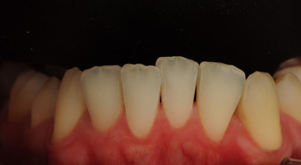 dents inferiors
